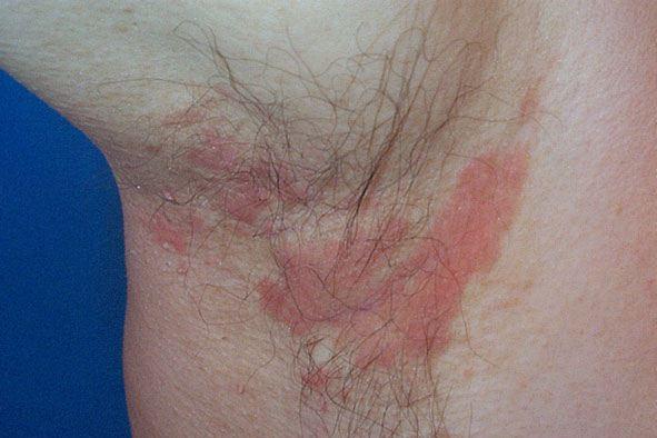 Seboreik Dermatit